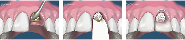 Cytoplast membrane and ridge preservation for implant