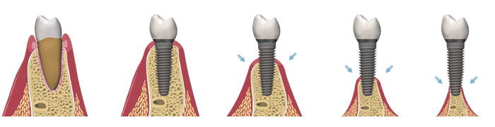 bone loss and dental implant at different bone levels