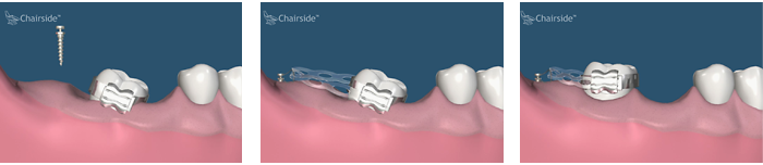 Dental implant and orthodontics