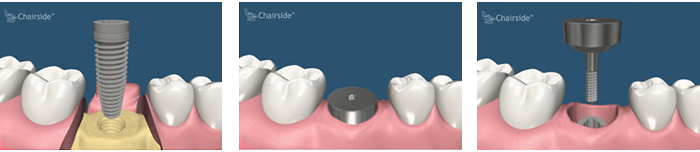 Single Stage Dental Implant Placement