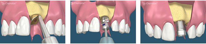 Immediate Dental Implant Placement