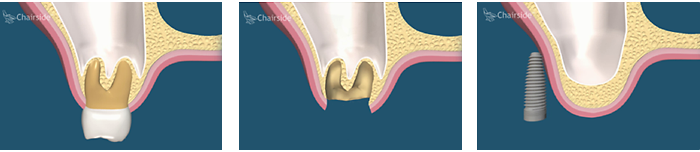 Delayed Dental Implant Placement with Grafting