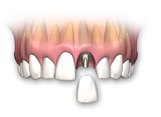Single tooth dental implant replacement options
