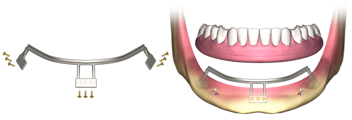 subperiosteal dental implant type