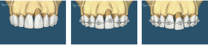 bone grafting with braces