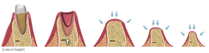 dental implant single tooth bone loss - loss in bone height