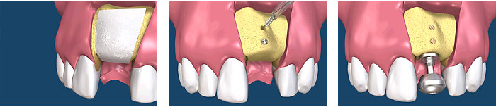 Single Tooth Grafting with Tenting Screws