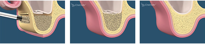 Sinus Lift Procedure for dental implants