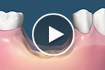 bone loss after tooth removal video