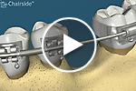 Lateral Orthodontic Grafting video
