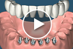 multiple tooth dental implant bridge