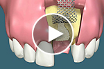 Single Tooth Grafting with Titanium Membrane Support video