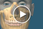 Sinus grafting video